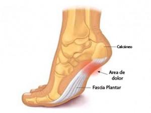 que significa dolor en el talon del pie derecho