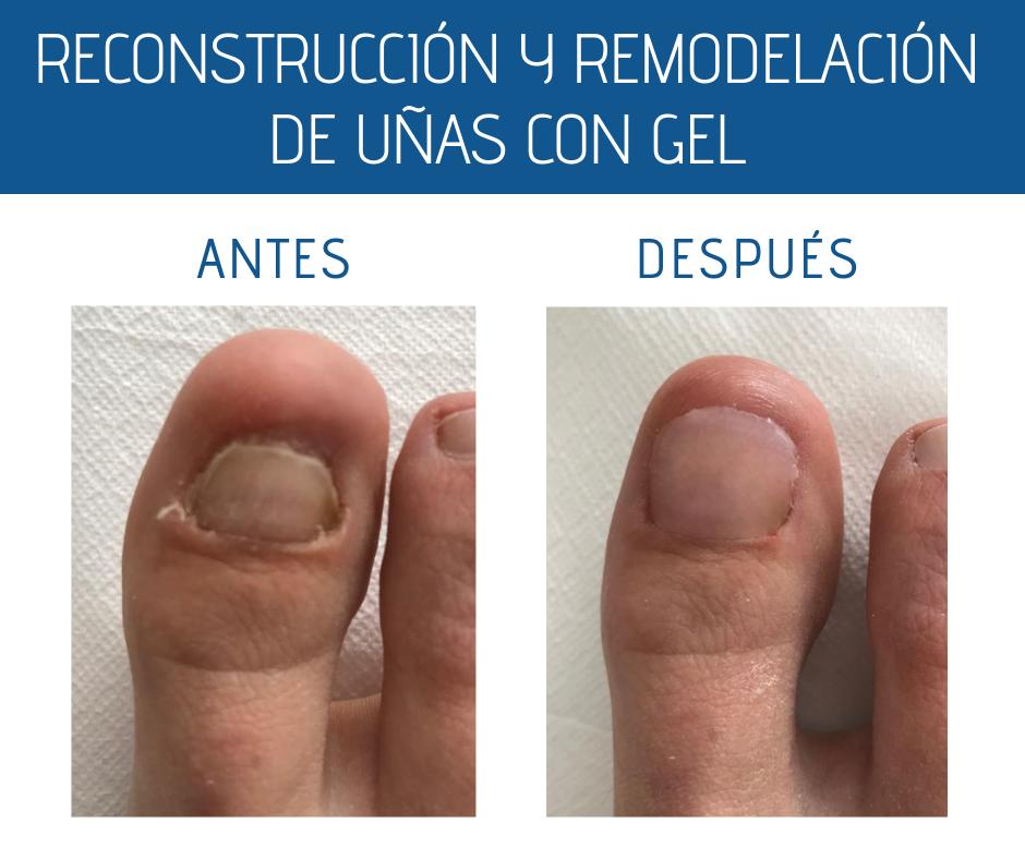 Reconstrucción antes y después