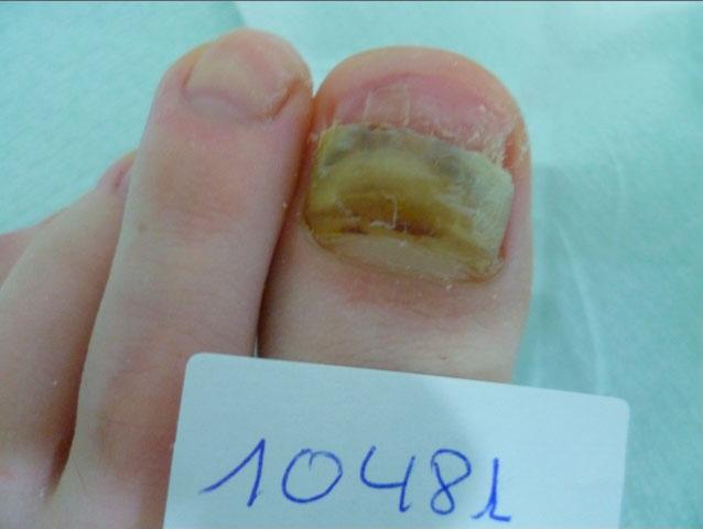 onicomicosis hongos en las uñas