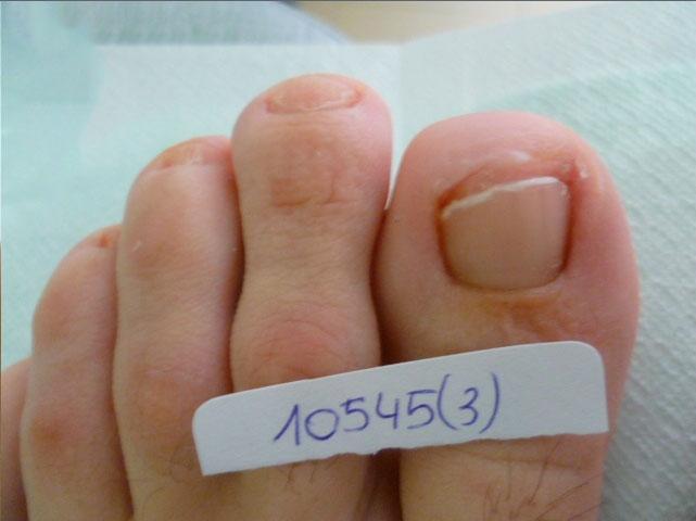 resultado tratamiento onicomicosis hongos en las uñas